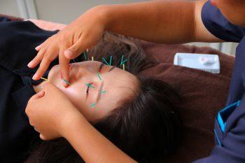 話題の美容鍼灸と合わせて、美白効果の高い水素パックを|新潟市中央区