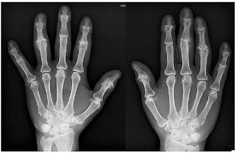 変形が見られる手指