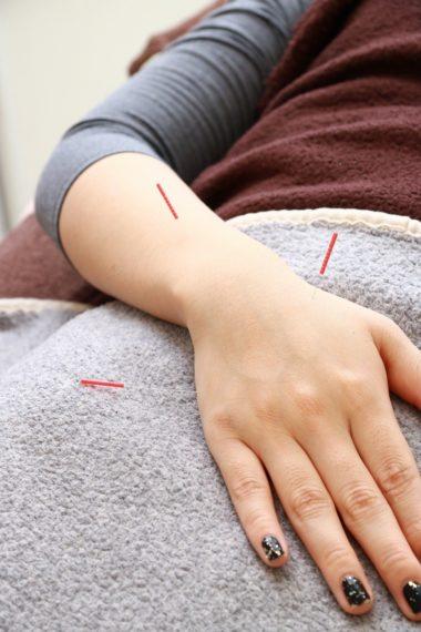 顔だけでなく腕、脚にも施術し、体全体を整えてくれる。アンチエイジングにも最適